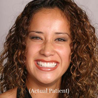 Cosmetic Dentistry - Actual Patient Smile