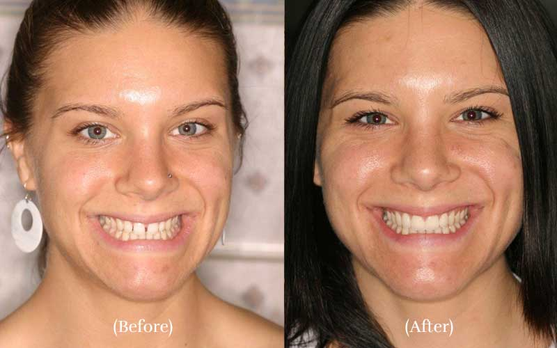 Minimal Prep Veneers Before & After Patient Smile